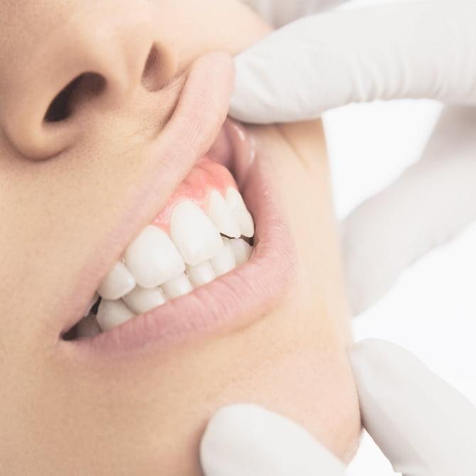 歯周病が気になる
