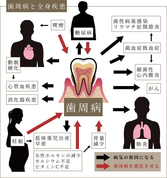 歯周病が全身の病気を悪化させる!?